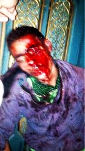 Islam_bloody_protester